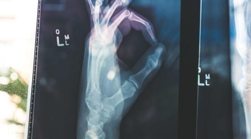 Osteoporoza – leczenie pod warunkiem złamania